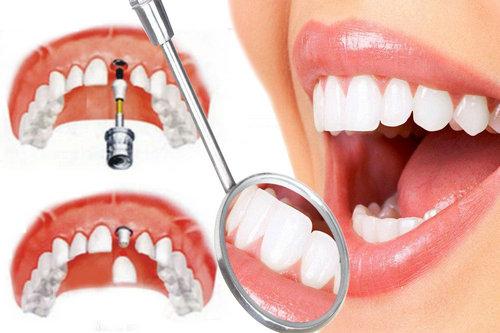 """种植牙成为亿万缺失牙的""""福星""""."""